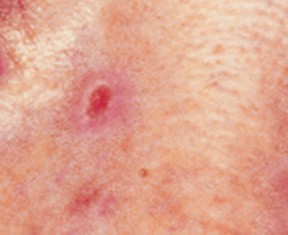pink growth basal cell carcinoma
