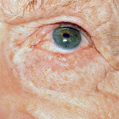 basal cell carcinoma lower eyelid lash line