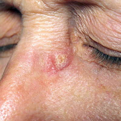 crusty spot eye squamous cell carcinoma