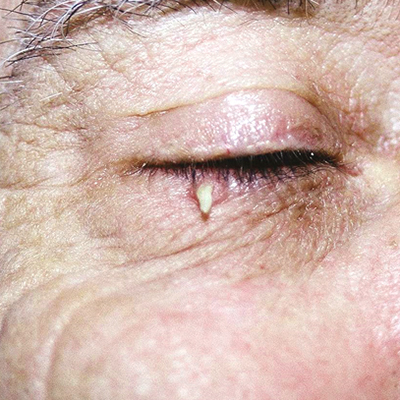 cutaneous horn squamous cell carcinoma lower eyelid