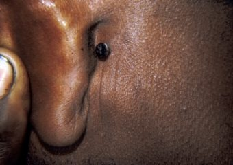 Pigmented BCC behind the ear