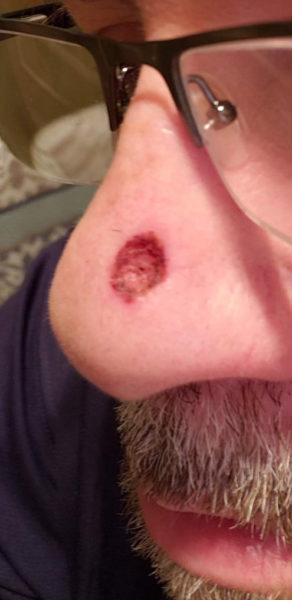 Picture of a man's nose after bcc treatment