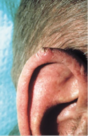 picture wart-like growth on man ear
