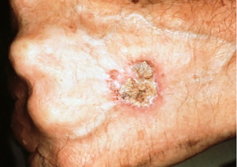 Patch on man hand squamous cell carcinoma