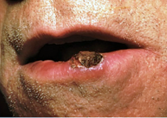 squamous cell carcinoma on lip