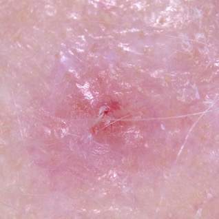 A nodular melanoma developing within an amelanotic melanoma in situ on the scalp.