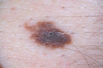 picture atypical mole