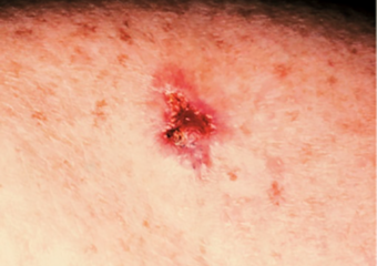 picture open sore on the skin basal cell carcinoma