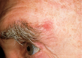reddish patch on man's forehead basal cell carcinoma