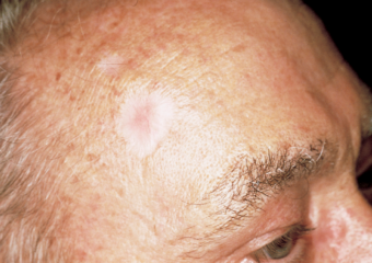 picture white scar man forehead basal cell carcinoma