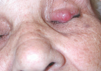 Picture merkel cell carcinoma on woman's left eyelid