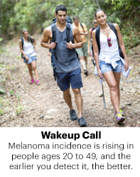 Melanoma incidence is rising in people ages 20 to 49